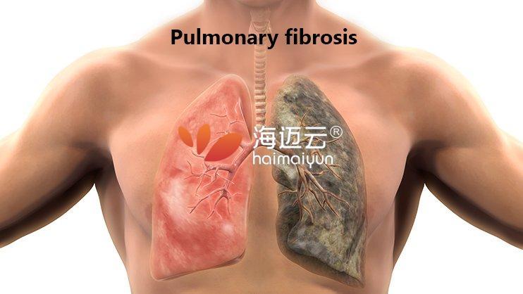 肺纤维化:症状,原因,治疗和自我管理